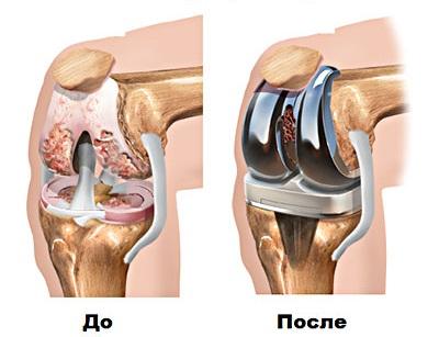 Эндопротезирование коленного сустава ход операции гиалуроновая кислота для суставов цена в аптеке